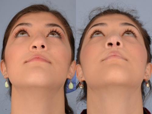 Cleft-Rhinoplasty case2 4