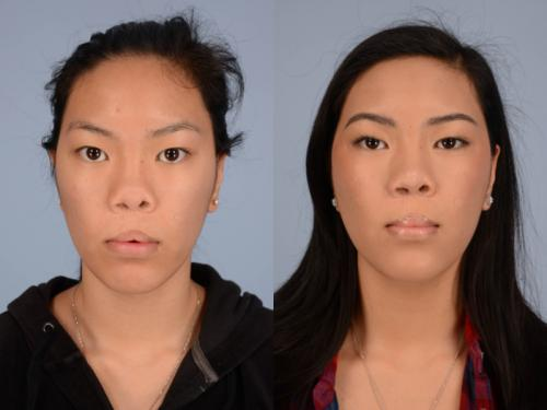 Cleft-Rhinoplasty case3 1