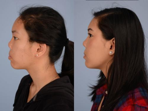 Cleft-Rhinoplasty case3 3