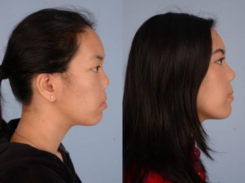 Cleft-Rhinoplasty case3 4