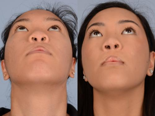 Cleft-Rhinoplasty case3 5